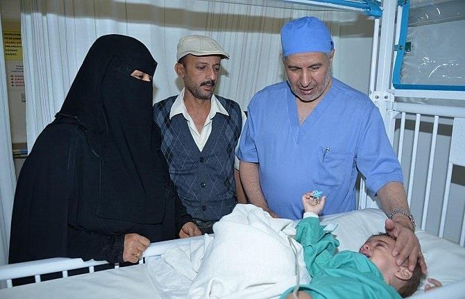 """نجاح عملية استئصال الجزء الطفيلي للطفل اليمني """"أحمد"""""""