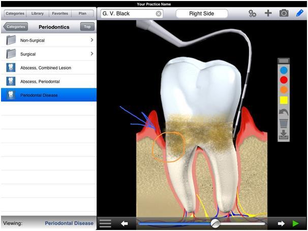 """""""DDS GP Yes!"""" هو تطبيق لأطباء الأسنان، حيث يساعد الأطباء على تقديم خطط العلاج للمرضى من خلال عرض جيد، ويبلغ سعره 500 دولار."""