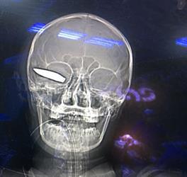 شاهد.. فريق جراحي بجازان يتمكن من استخراج مقذوف من رأس جندي بالحد الجنوبي