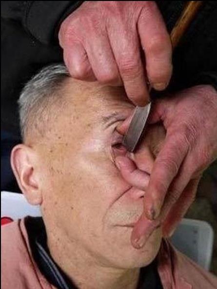فن تنظيف مقلة العين عند الحلاق في الصين شىء لايصدقه عقل 197ef310-b83b-47ec-b78c-e230ca318929