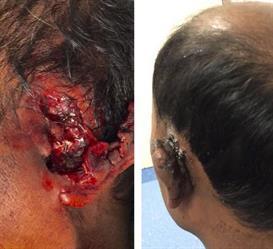 شاهد.. كيف أُنقذت أذن مريض من البتر بمستشفى الإمام عبدالرحمن الفيصل بالرياض