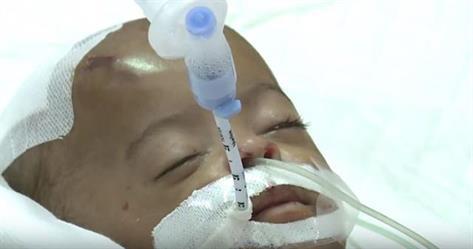 الطفلة سلامة التي تعرضت للتعذيب على يد الخادمة
