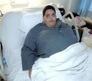 نجاح جراحة لـ«عشريني» وزنه 250 كيلوغراماً