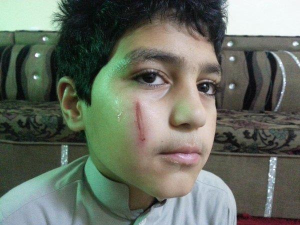 أب ينشر صورة تعرُّض ابنه للضرب من معلمه.. وتعليم المدينة: سنحقق في الأمر