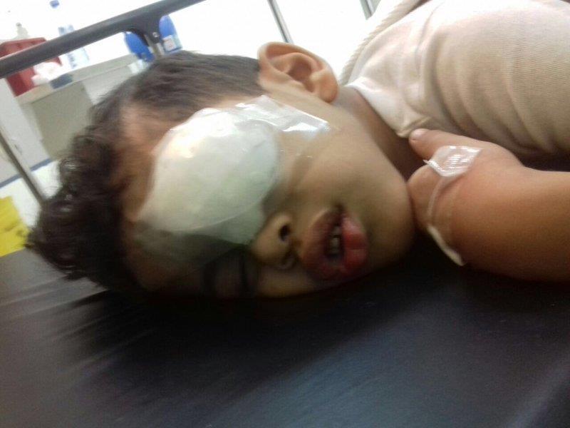الطائف: انفجار لعبة نارية في عين الطفل تتسبب في تضرر الشبكية والقرنية