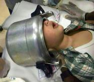 اخراج رأس طفل من قدر ضغط