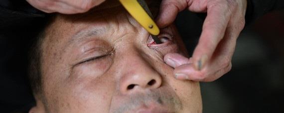 فن تنظيف مقلة العين عند الحلاق في الصين شىء لايصدقه عقل 8f24cec7-bace-464c-8cf5-d3a21bebcf21