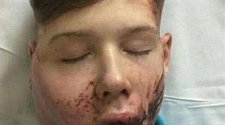 ضحية العنف في المدرسة