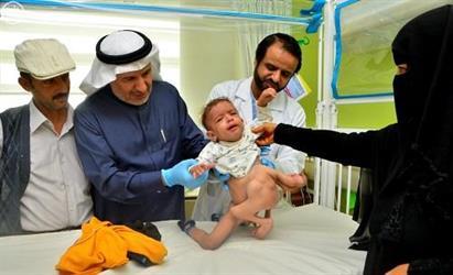 التوأم السيامي اليمني