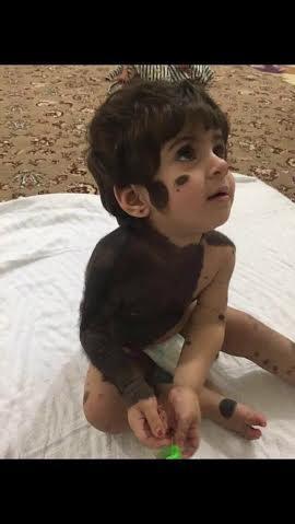 طفلة تعاني مرضاً نادراً شوّه جسدها.. ومغردون يناشدون علاجها