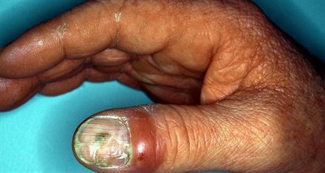 كيف يمكن معالجة فطريات الأظافر والوقاية منها؟