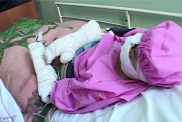 أفغاني مدمن يقطع وشفتي زوجته بسكين abca52ef-4e98-4c9c-b