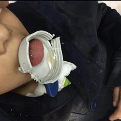 إنقاذ طفل من احتباس حلقة بلاستيكية داخل حلقه