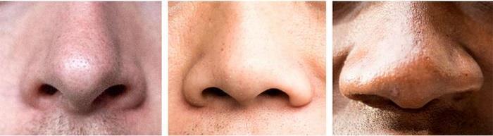 قل لي أين تسكن .. أقل لك ما هو شكل أنفك!