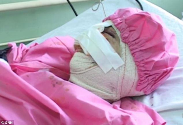 أفغاني مدمن يقطع وشفتي زوجته بسكين e3532c5b-2ec5-4d3e-a