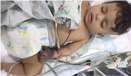 """مأساة الطفل """"جسار"""".. الأطباء يقررون بتر اليد.. ووالده: """"الصحة"""" اكتفت ببيان هزيل"""