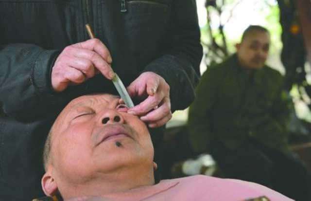 فن تنظيف مقلة العين عند الحلاق في الصين شىء لايصدقه عقل E8d6a7e1-c3a2-426d-b550-d00d70c0c1eb