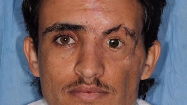فريق طبي بمدينة الملك فهد ينجح في زراعة عين اصطناعية وعظام الوجه لمريض