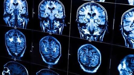 الذكاء والنجاح يجعلك أكثر عرضة لسرطان الدماغ!